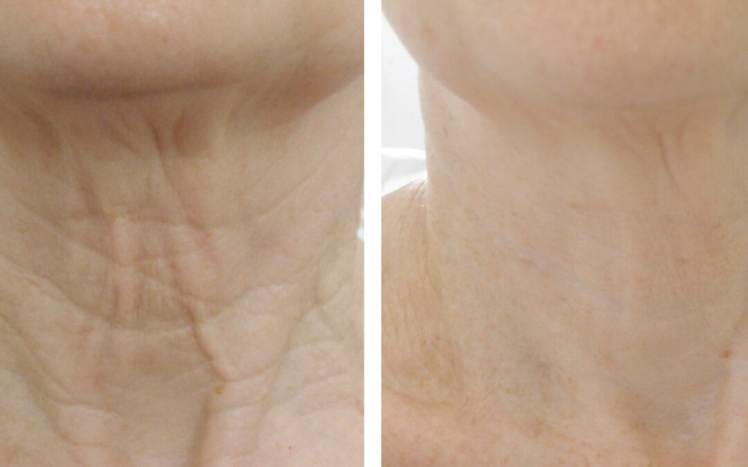 Skin Tightening EndyMed